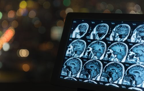MRI scanning could become ten times faster using AI Technology (The Week in AI)